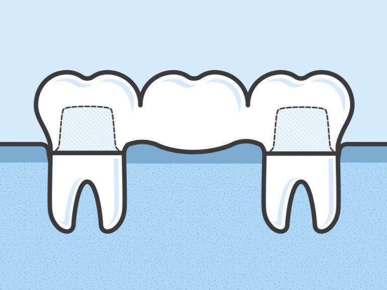 Dental Bridges Winchester