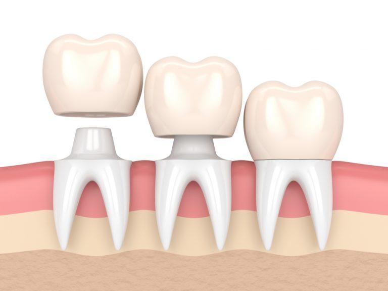 Dental Crowns Winchester