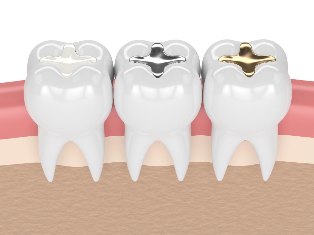 Dental fillings Winchester