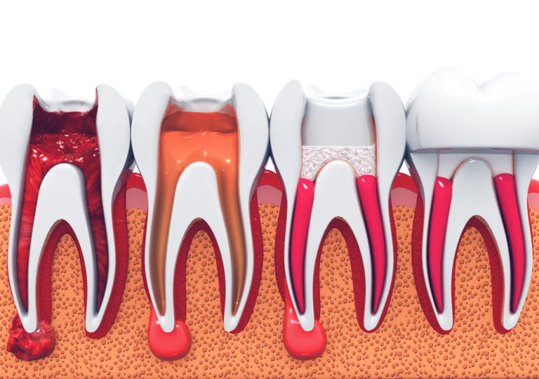 Dentist Winchester Root Canals