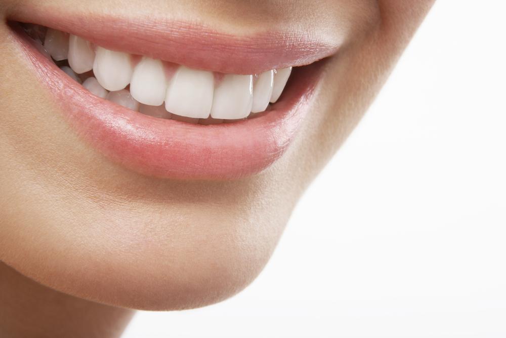 Teeth Whitening Winchester